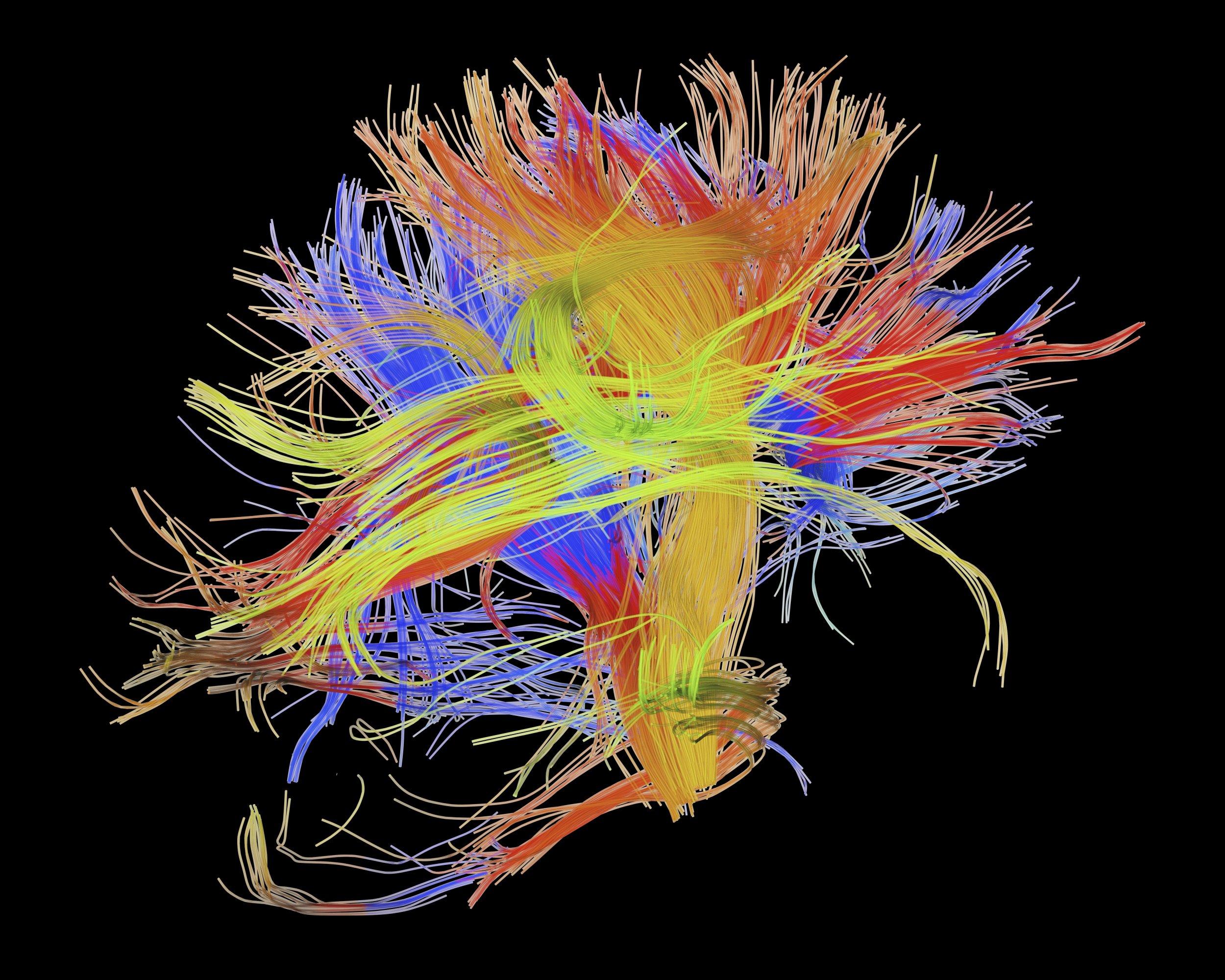 05_06_Brain_Connectome_01 : wiring brain - yogabreezes.com