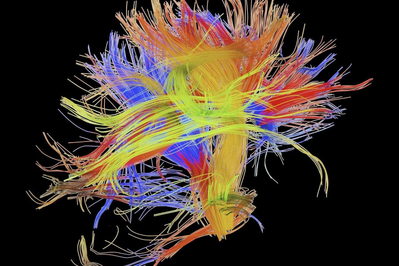 05_06_Brain_Connectome_01