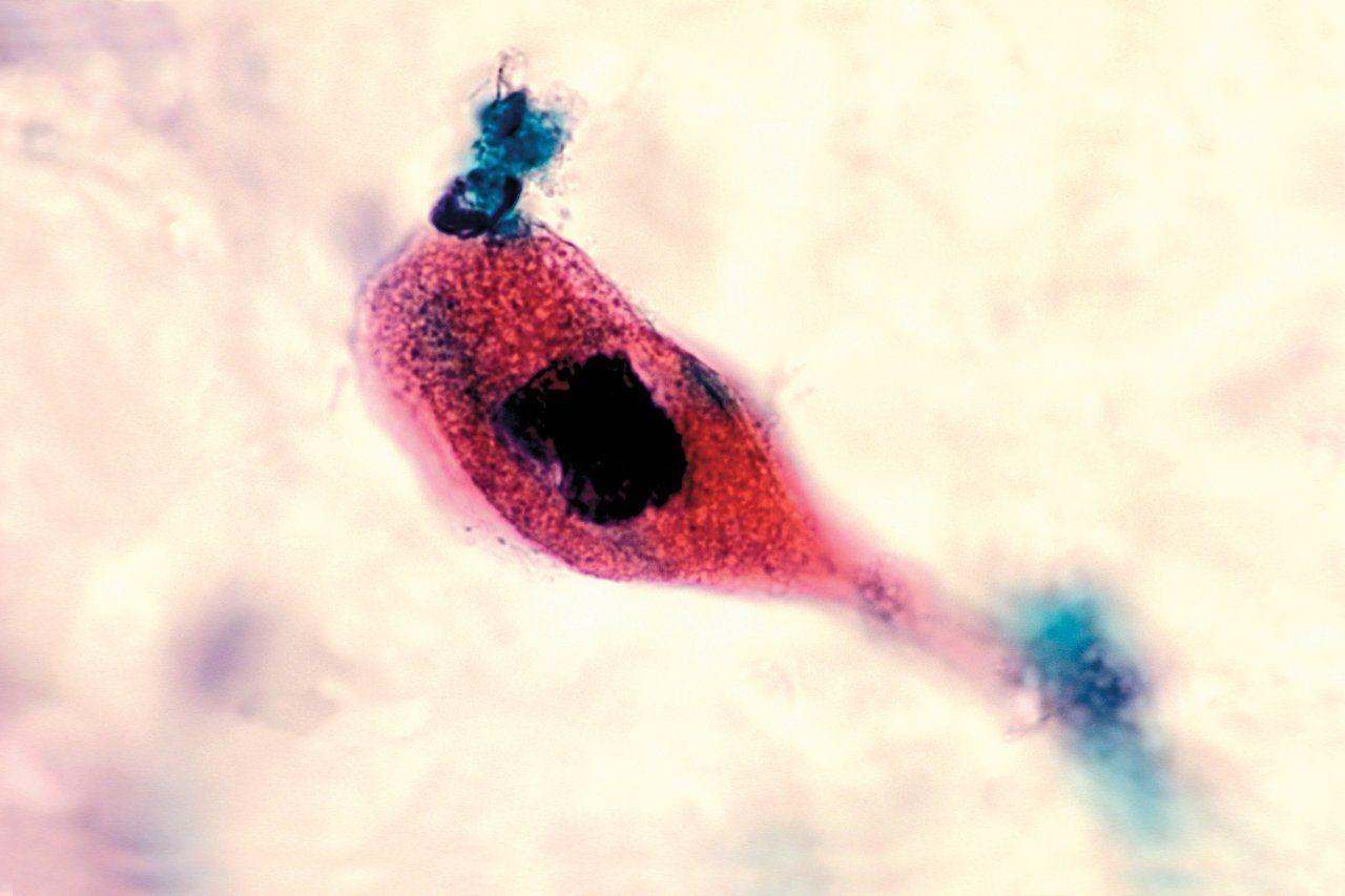 sepkowitz-nb5109-smallpox-cancer-main-tease