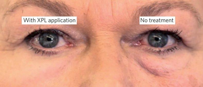 anti-aging second skin botox