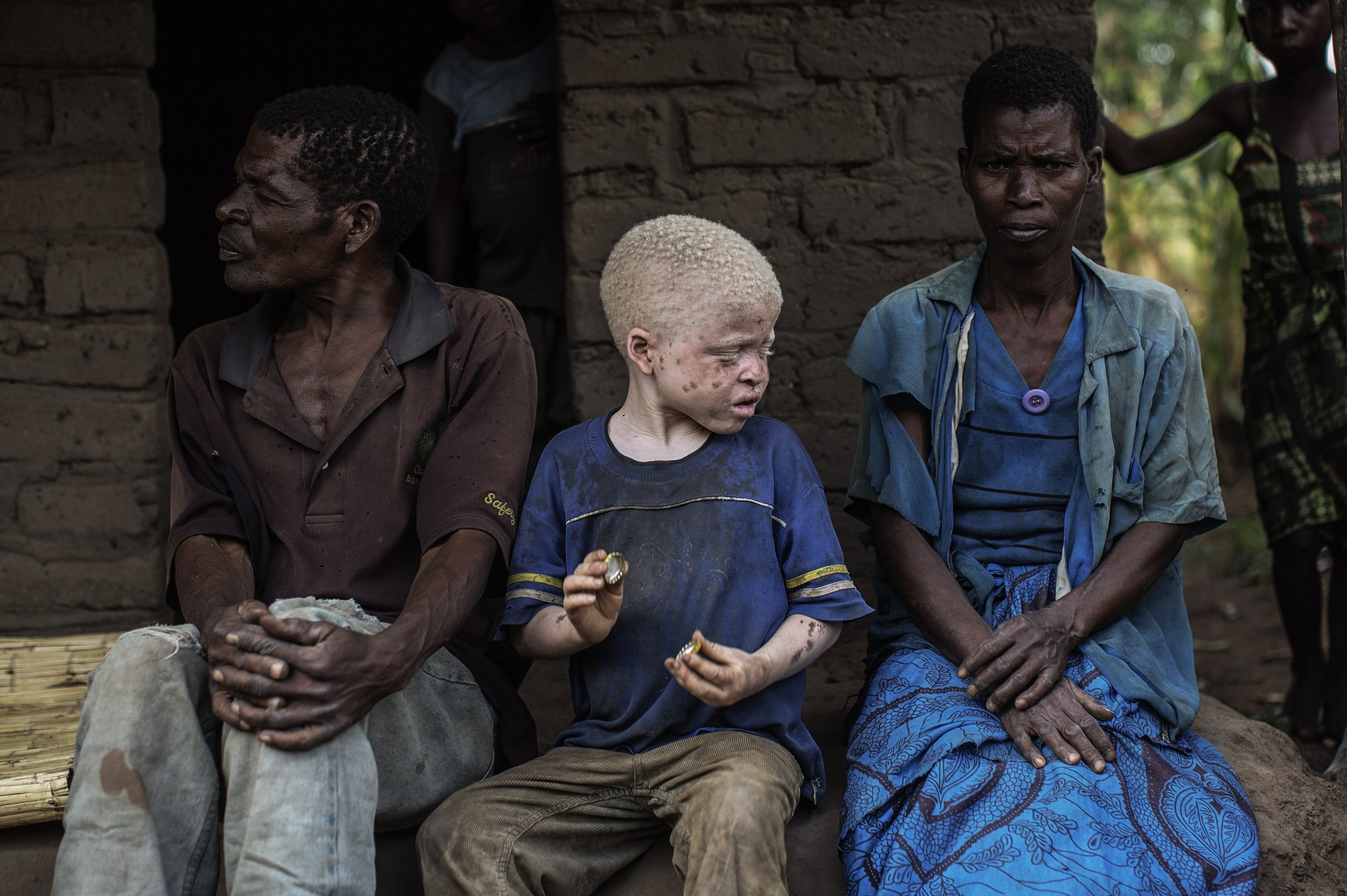 Malawian albino child with parents