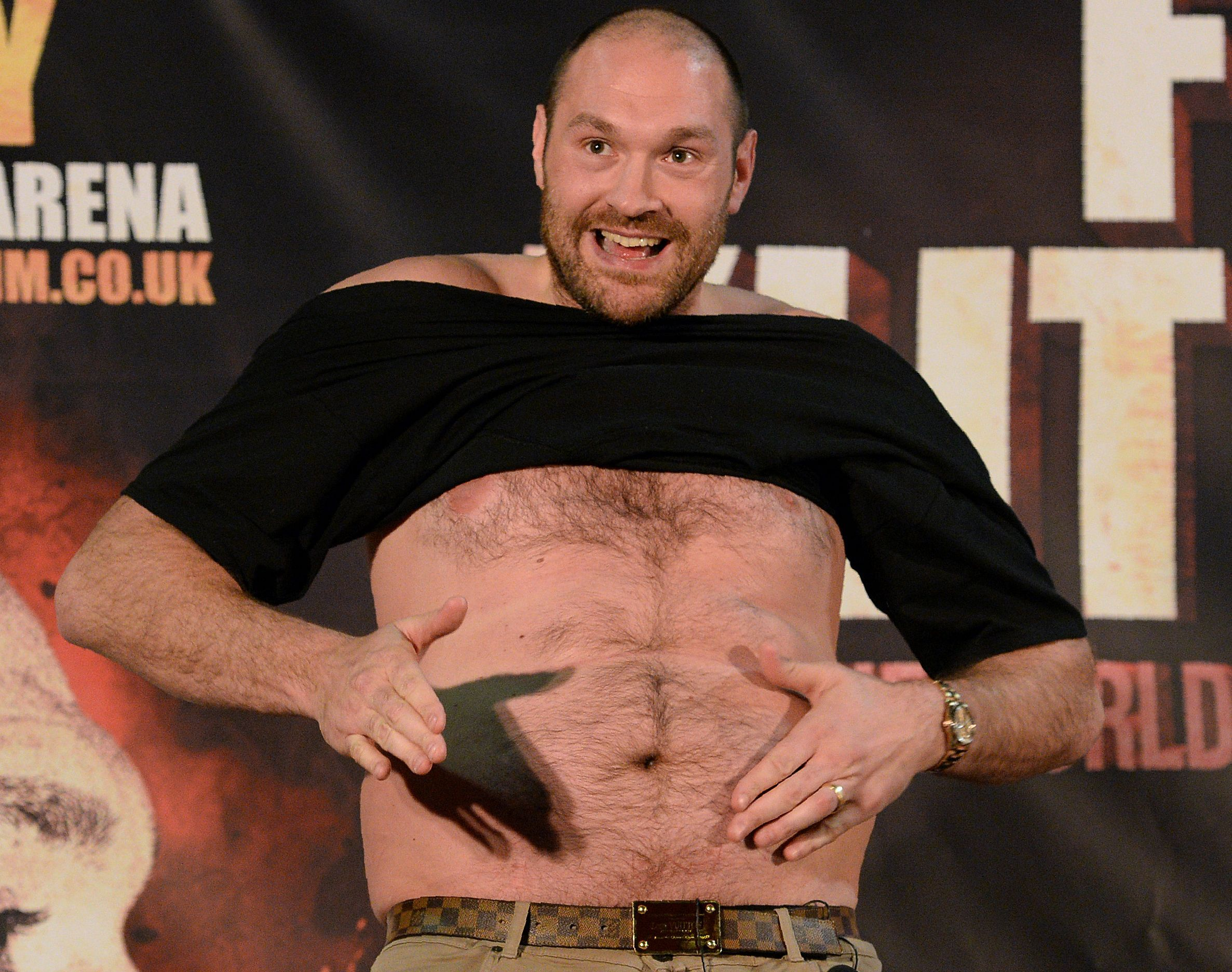 WBA and WBO heavyweight champion Tyson Fury.