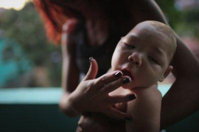 Brazil microcephaly baby