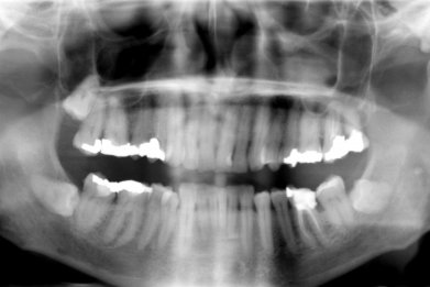 stem cell teeth cavity root canal