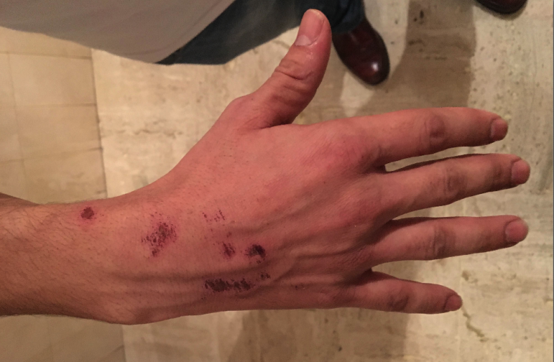 Said Nait's hand injuries after he jumped the promenade wall