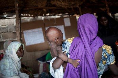 Nigeria malnourished child