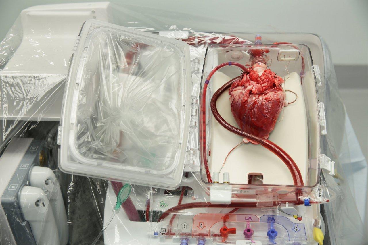 08_26_GSOrganTransplants_01