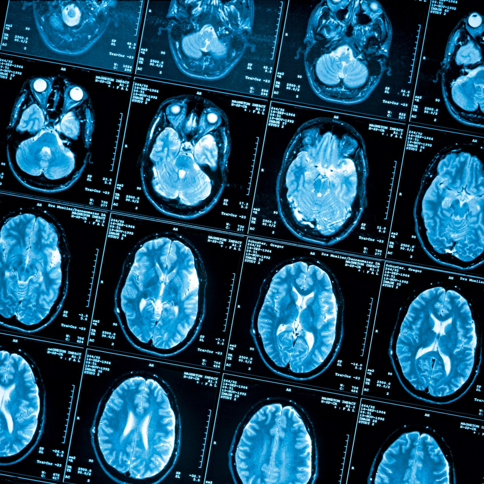 Brain Scans Reveal How Poverty Hurts >> How Poverty Affects The Brain