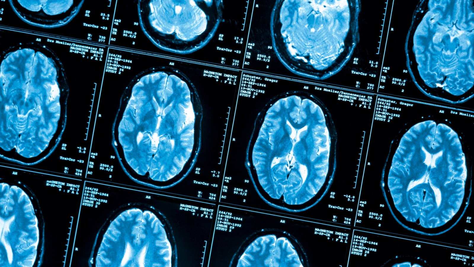 How Poverty Affects the Brain