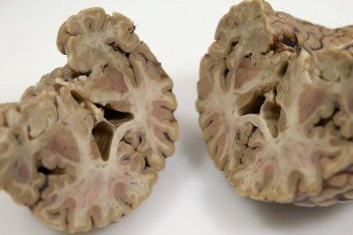 08_26_brains_01