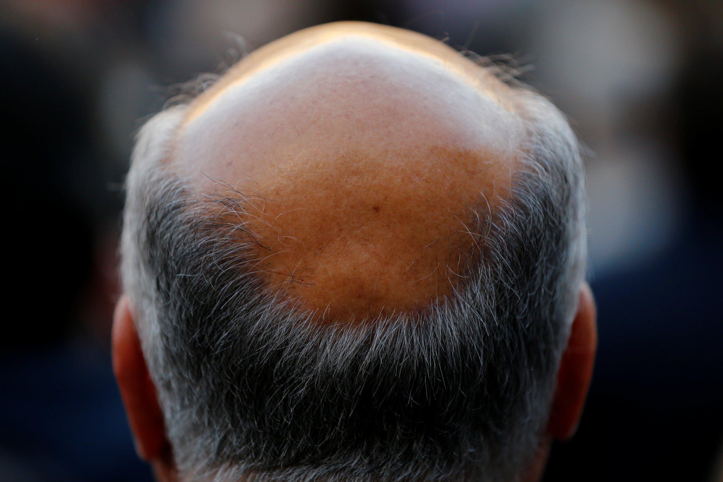 09_30_bald_01