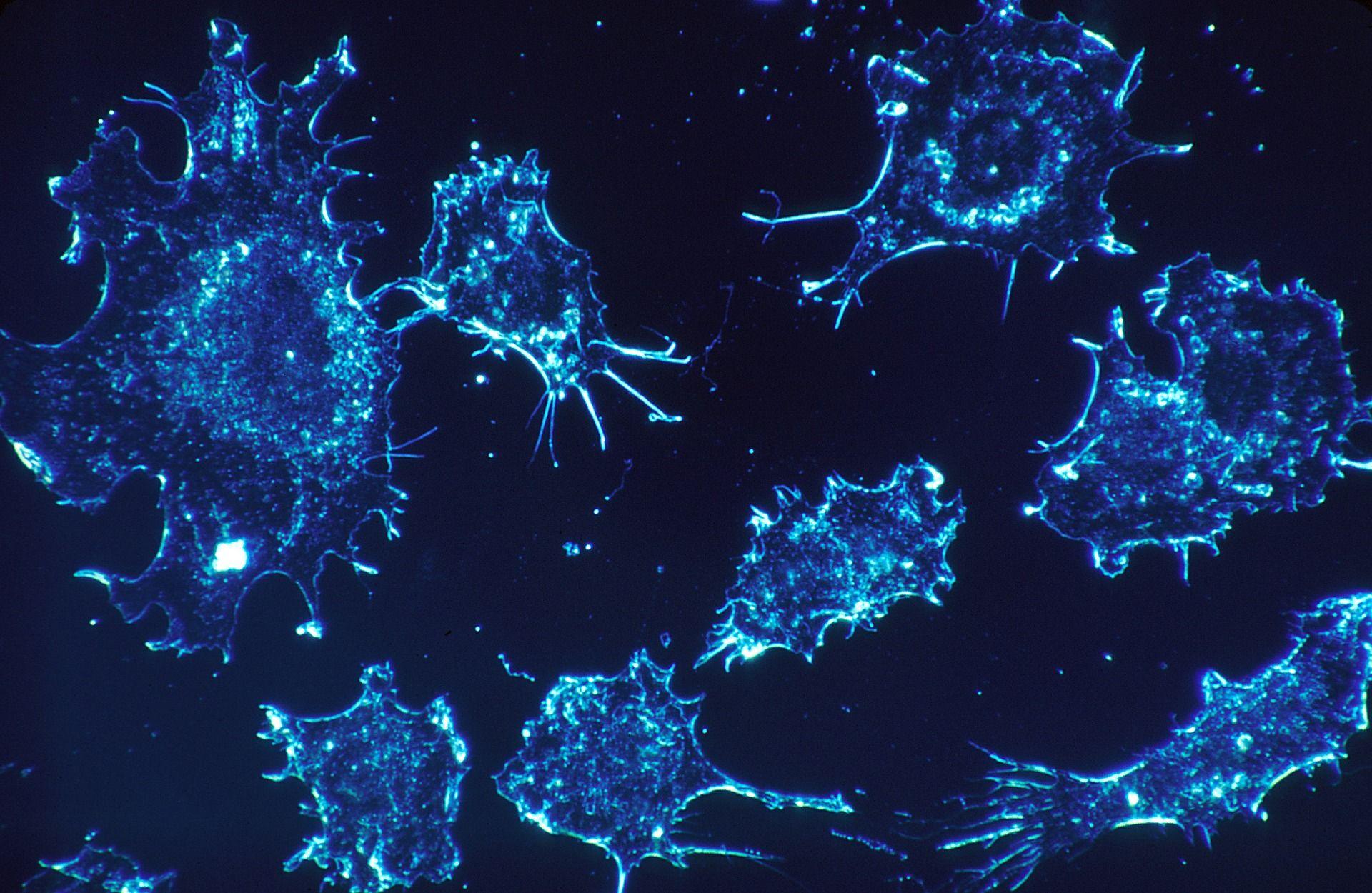 cancer-cells-541954_1920