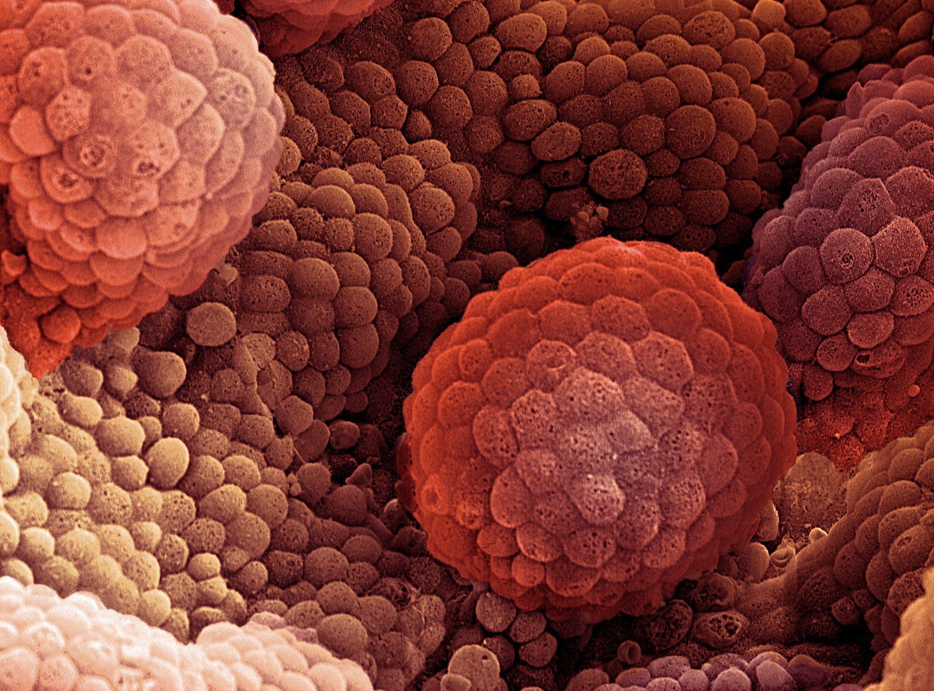 aggressive cancer a