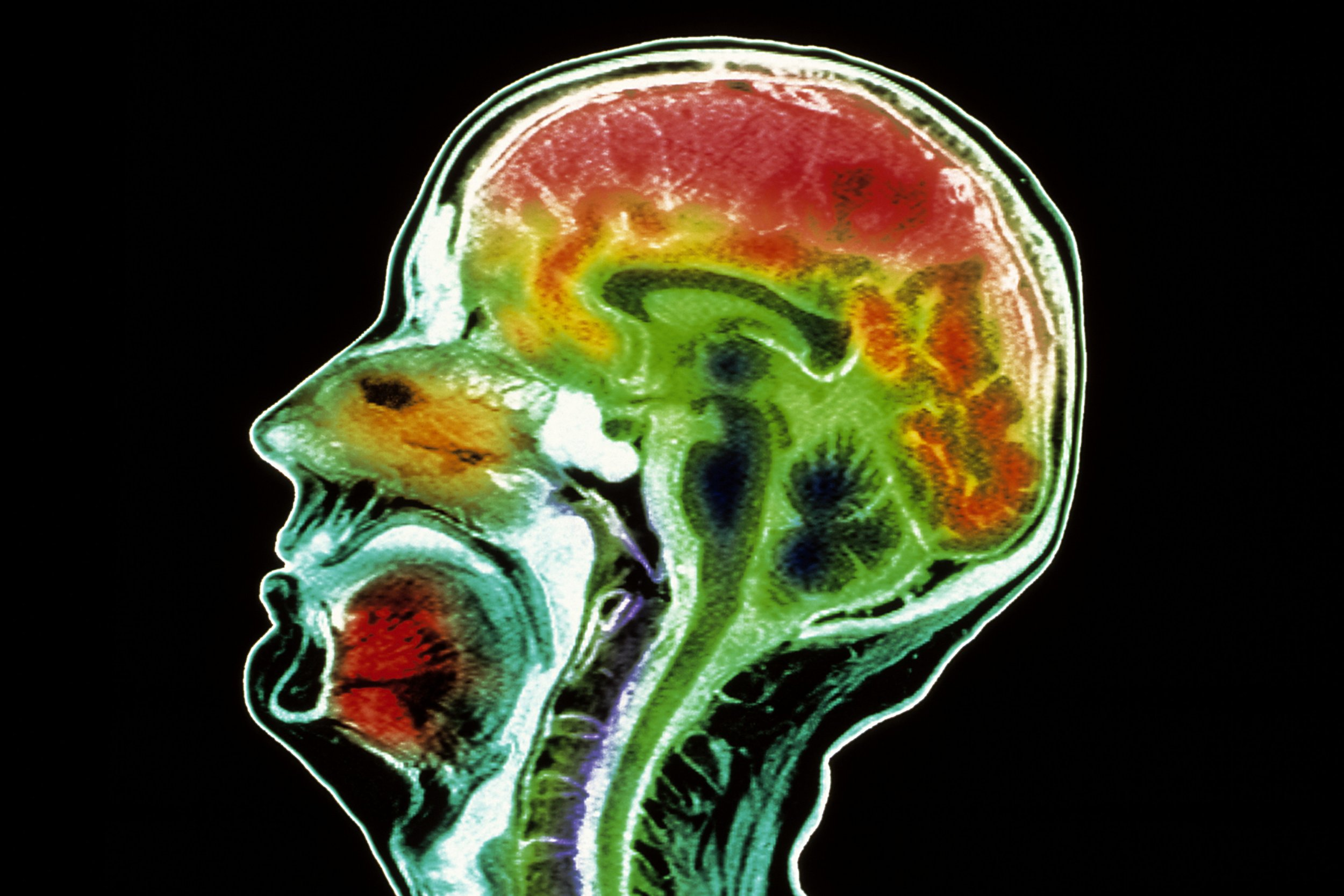 Marketers Exploit The Aged With Unproven Brain-Health Claims
