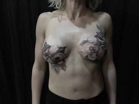 03_31_mastectomy_tattoo_02