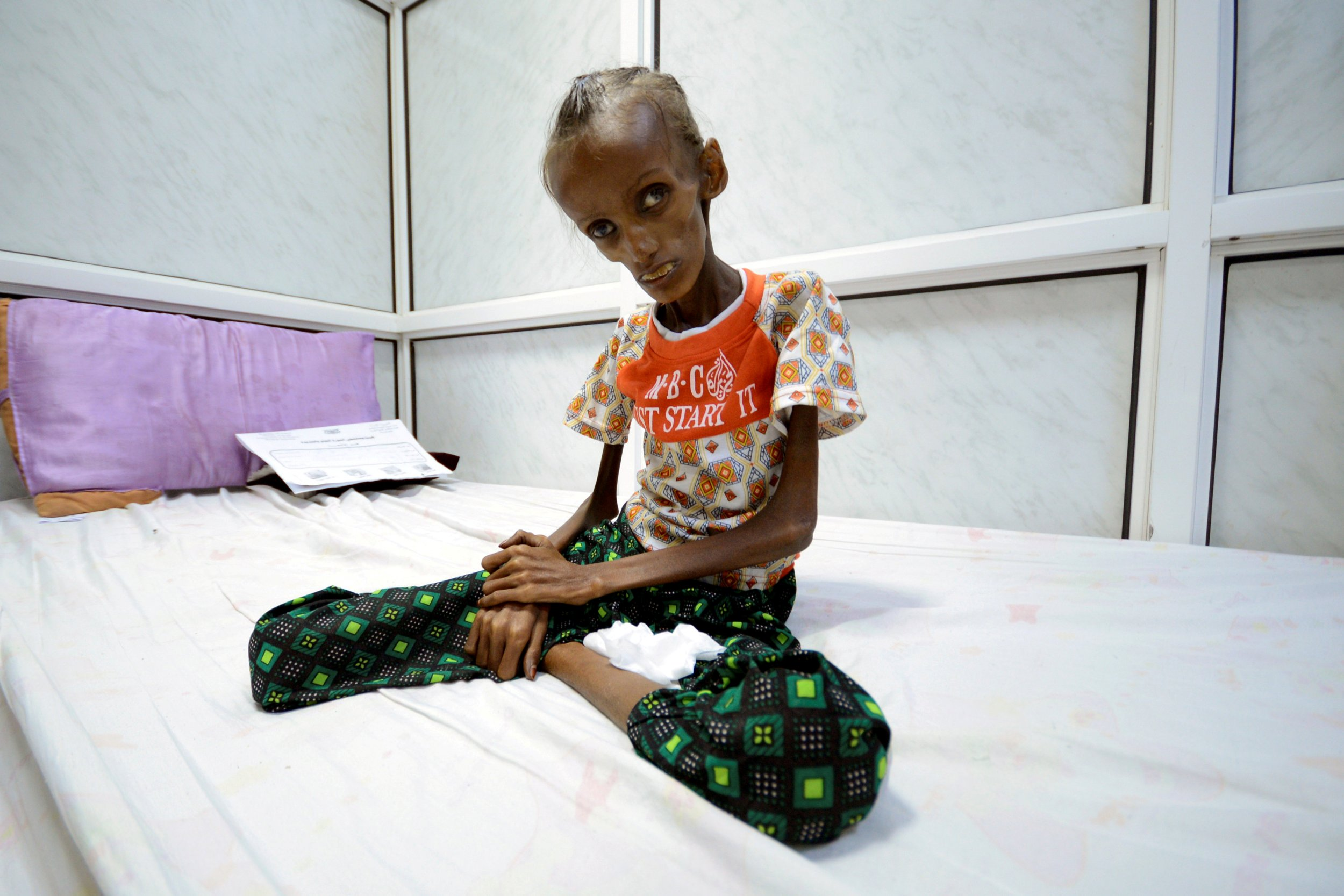 03_20_Houthi_Starving_01