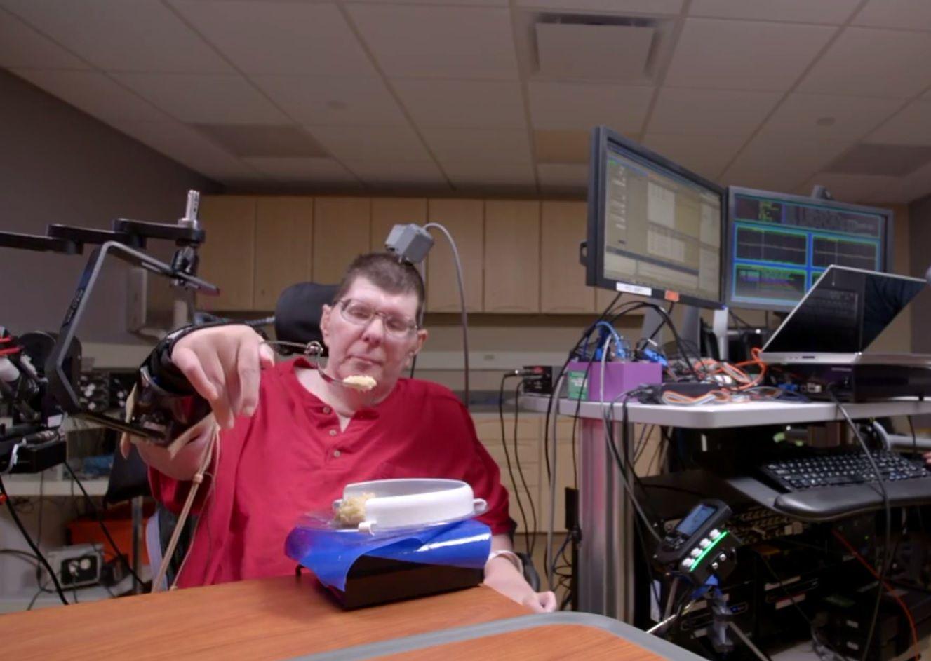 brain implant prosthetic paralused quadriplegic