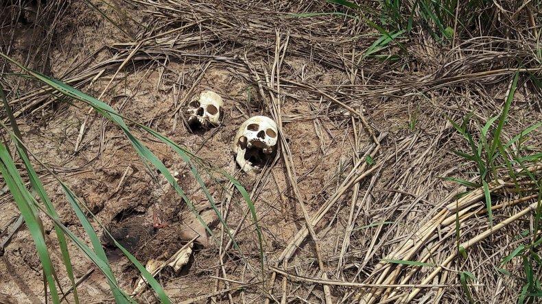 Bones in Congo grave