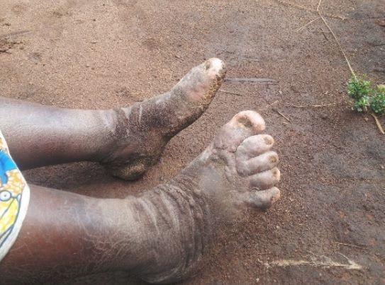 barefoot mud walk