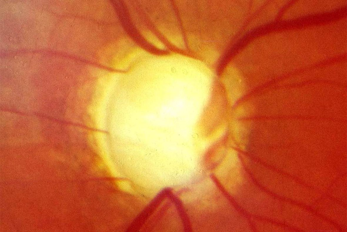 New Eye Test Could Spot Glaucoma And Prevent Blindness In