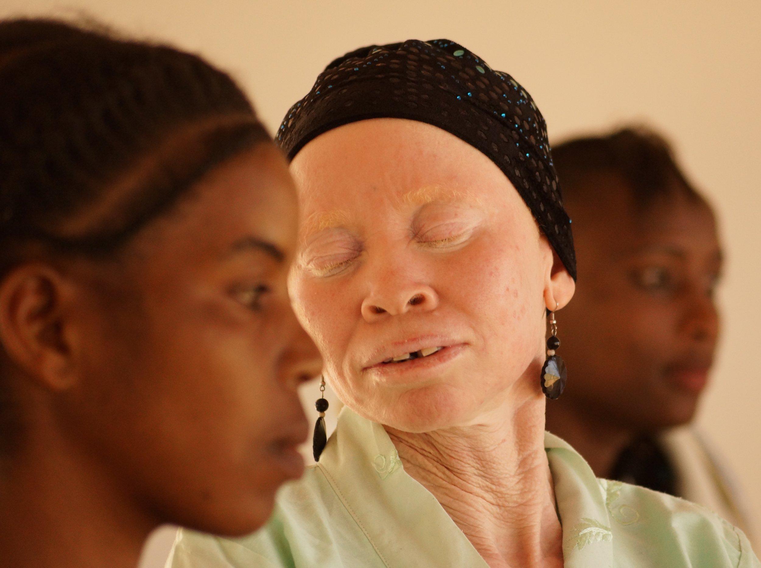 Tanzania albinism collective