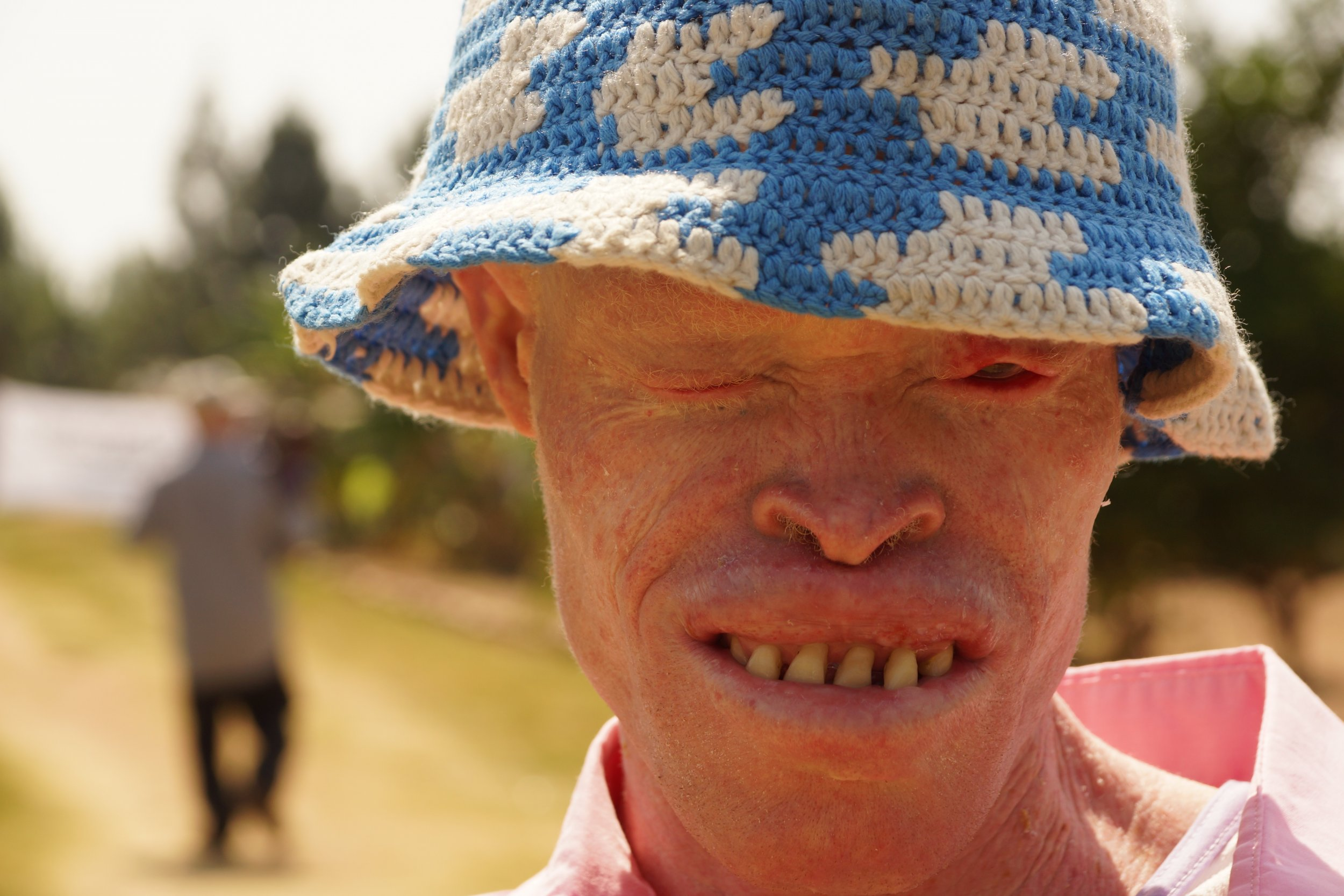 Tanzania's Persecuted Albinos Are Singing for Their Lives