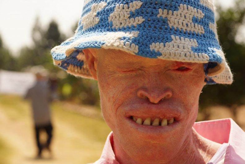 Tanzania Albinism Collective 2