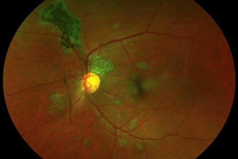 Ebola-retinal-scars