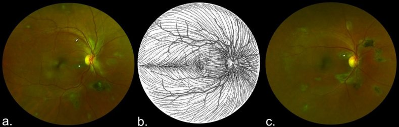 ebola-eye