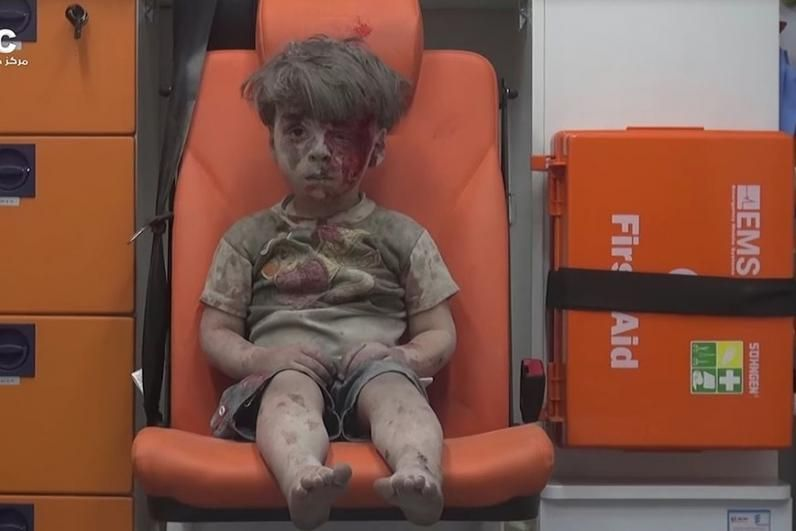 syria-boy-after-aleppo-air-strike