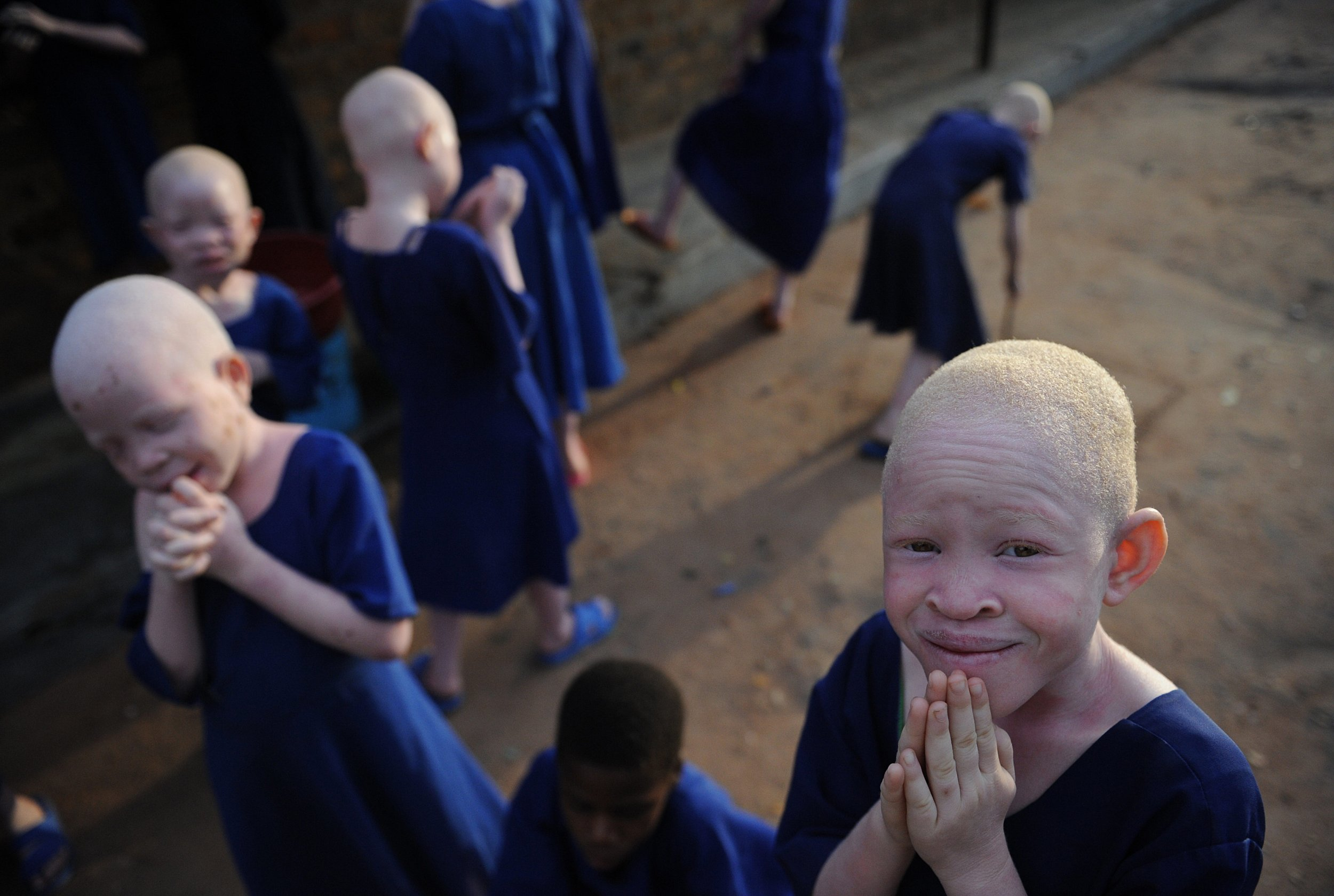Albino children Tanzania