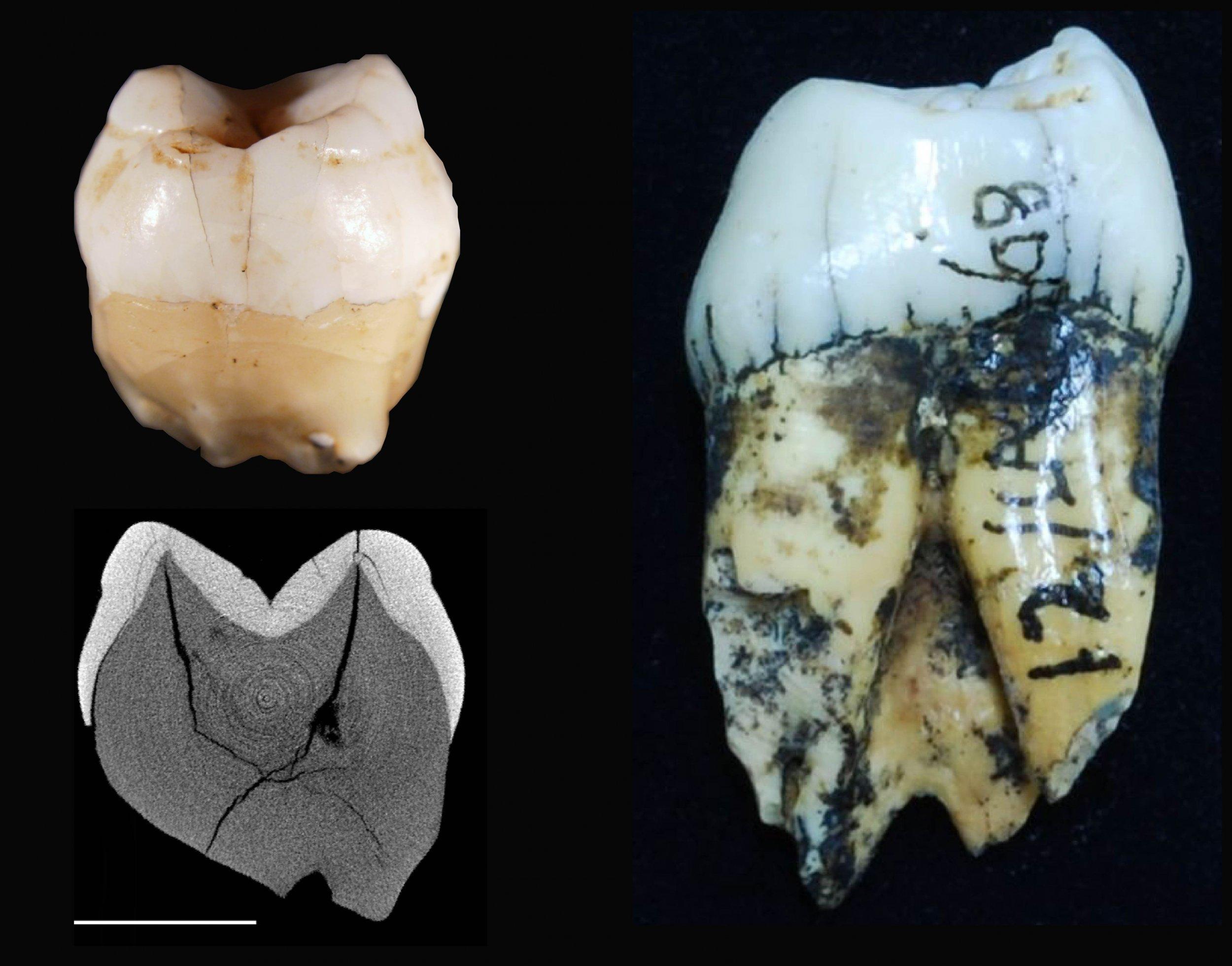 Lida Ajer teeth