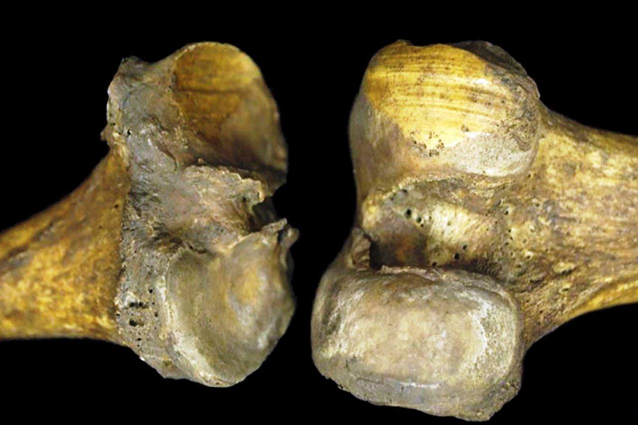 knee-bones