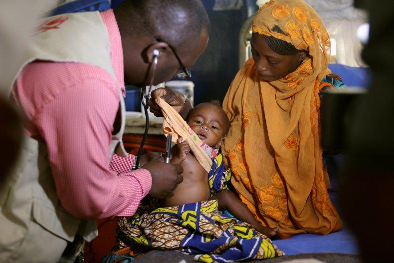 Nigeria malnourished baby