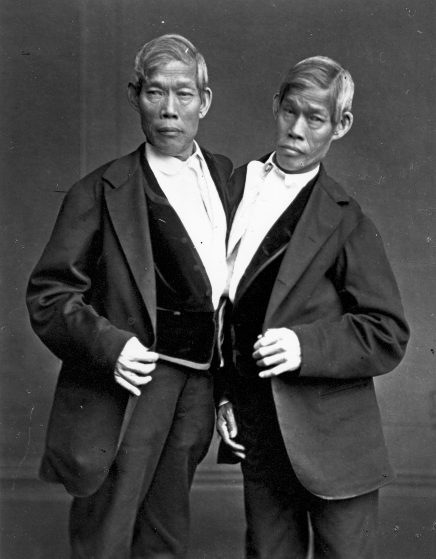Chang_Eng_Bunker_Siamese_Twins