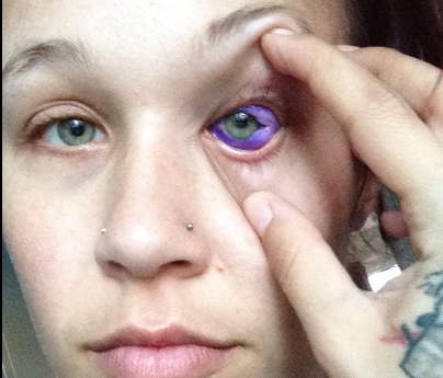 Model goes blind after tattooing eyeball warns others of for Freckle tattoo cost