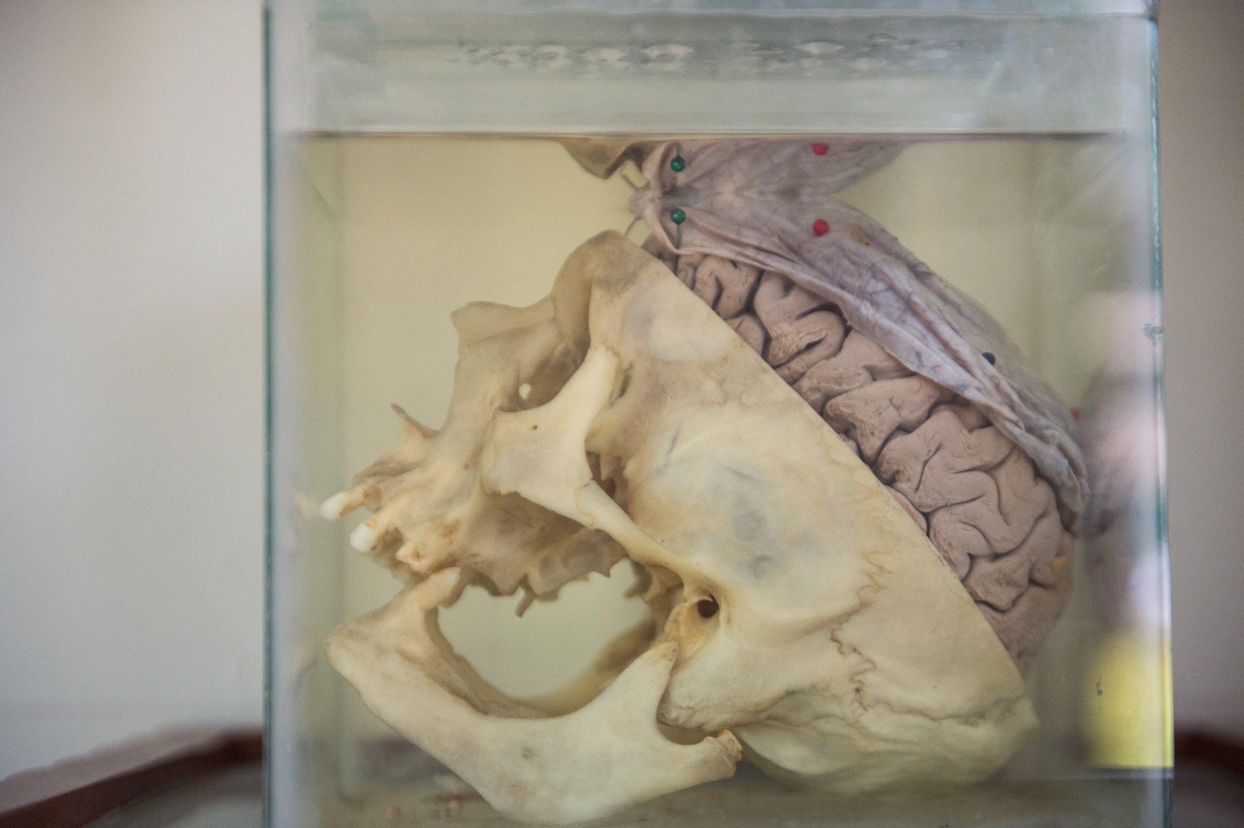 10_09_brain
