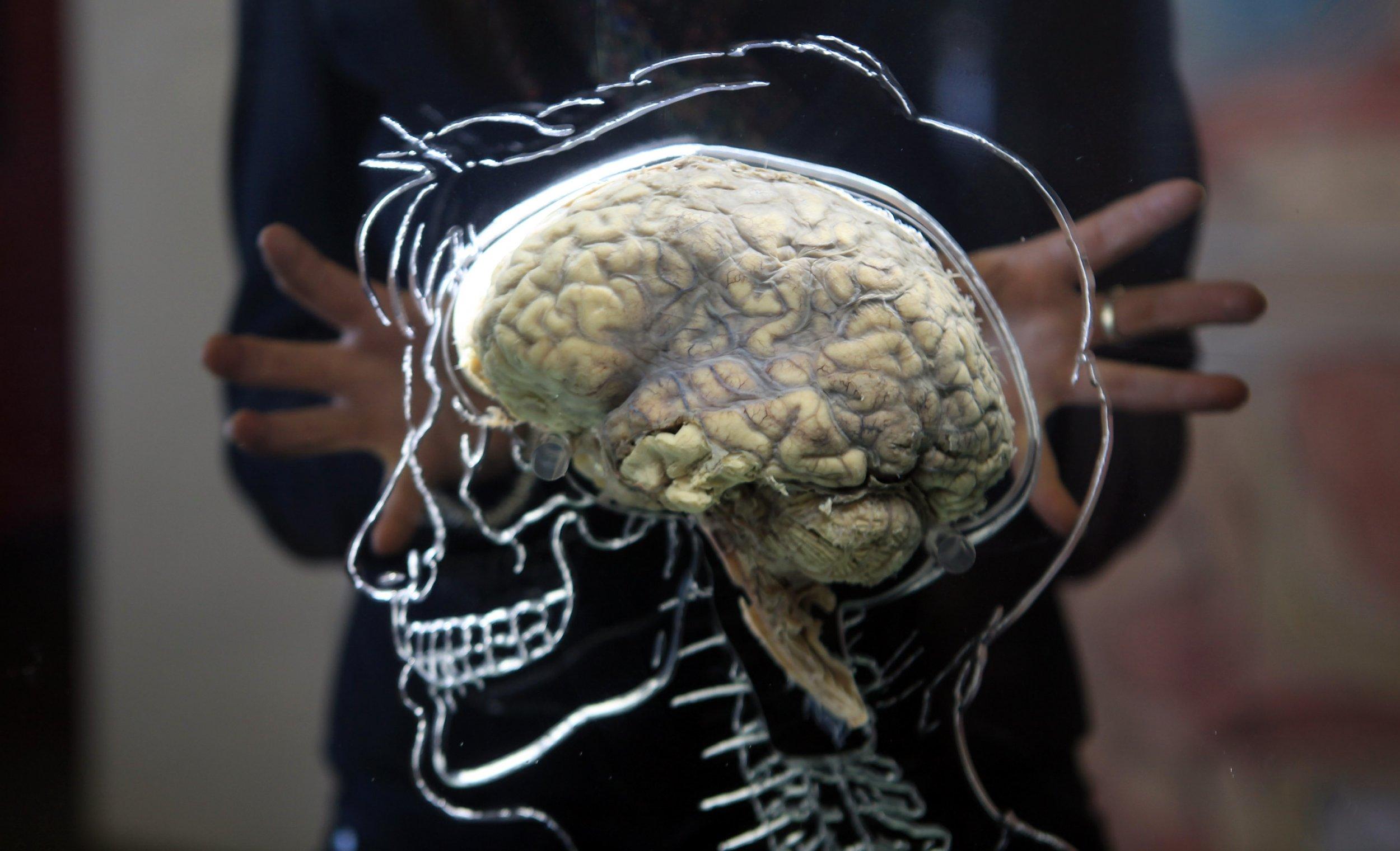 1_08_brain