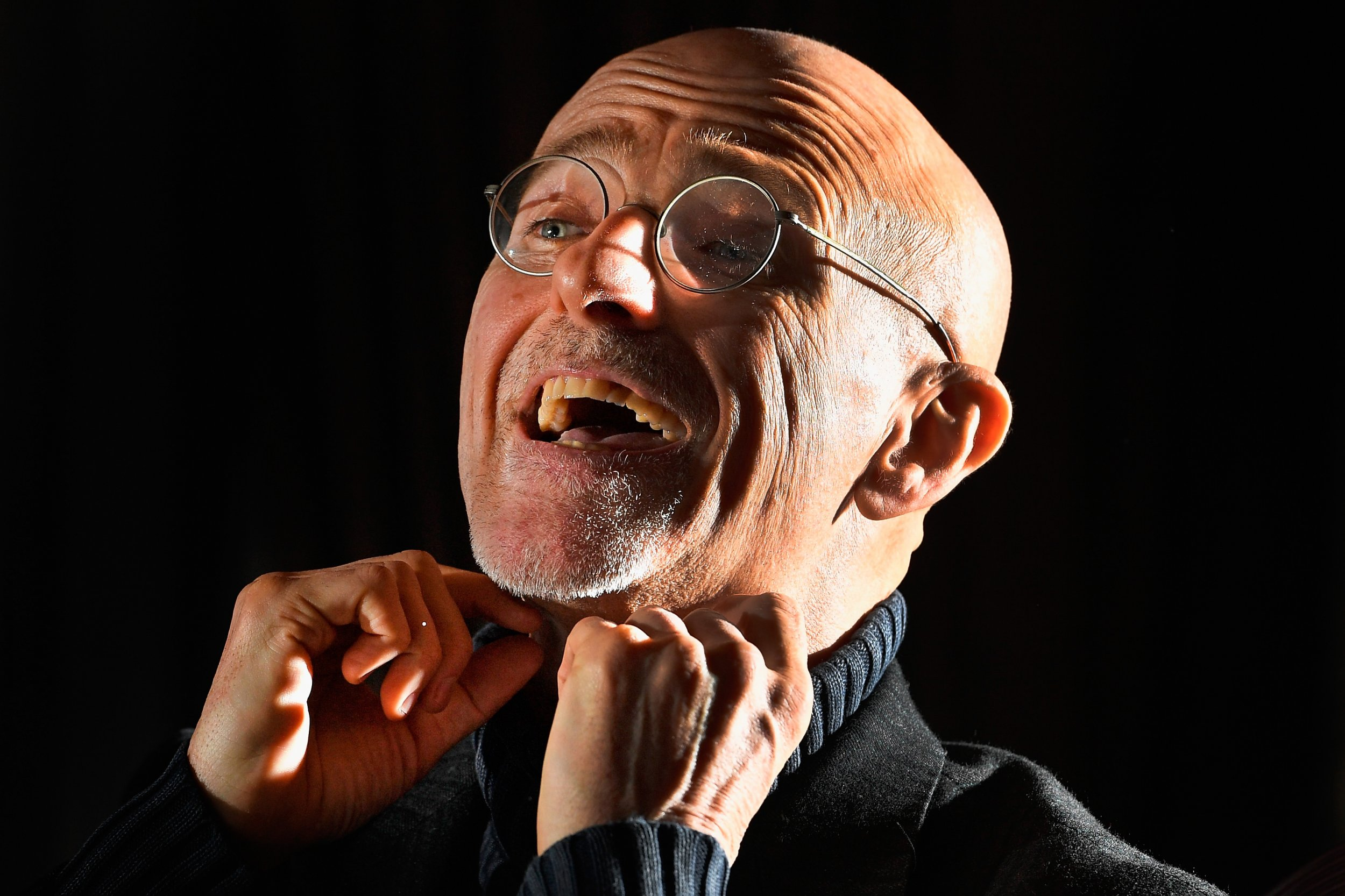 The first human head transplant has been performed on a corpse