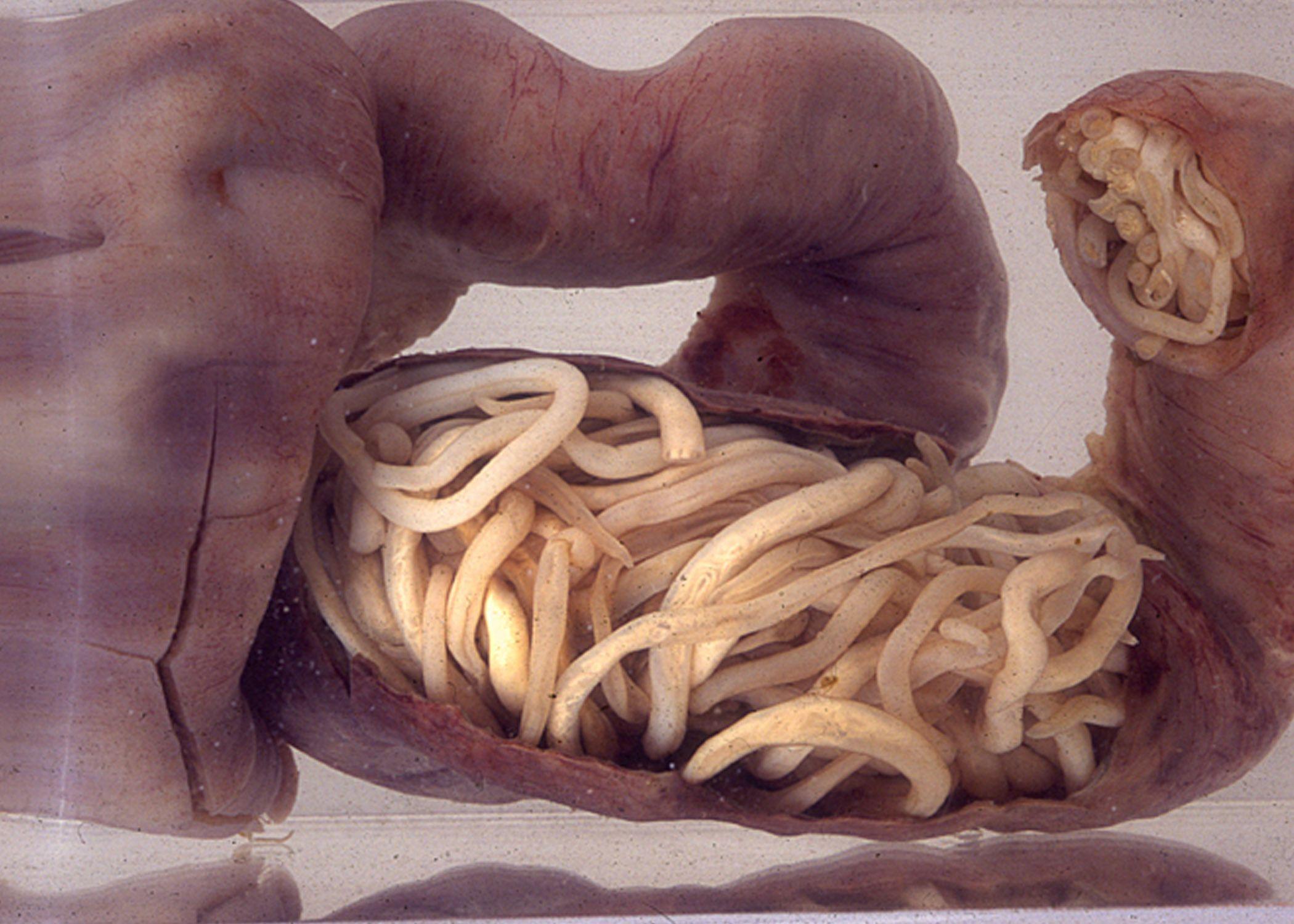 Ascaris worms