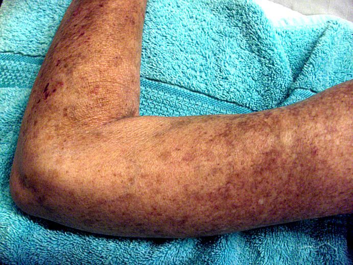11_17_Left_Arm_Scleroderma_Patient