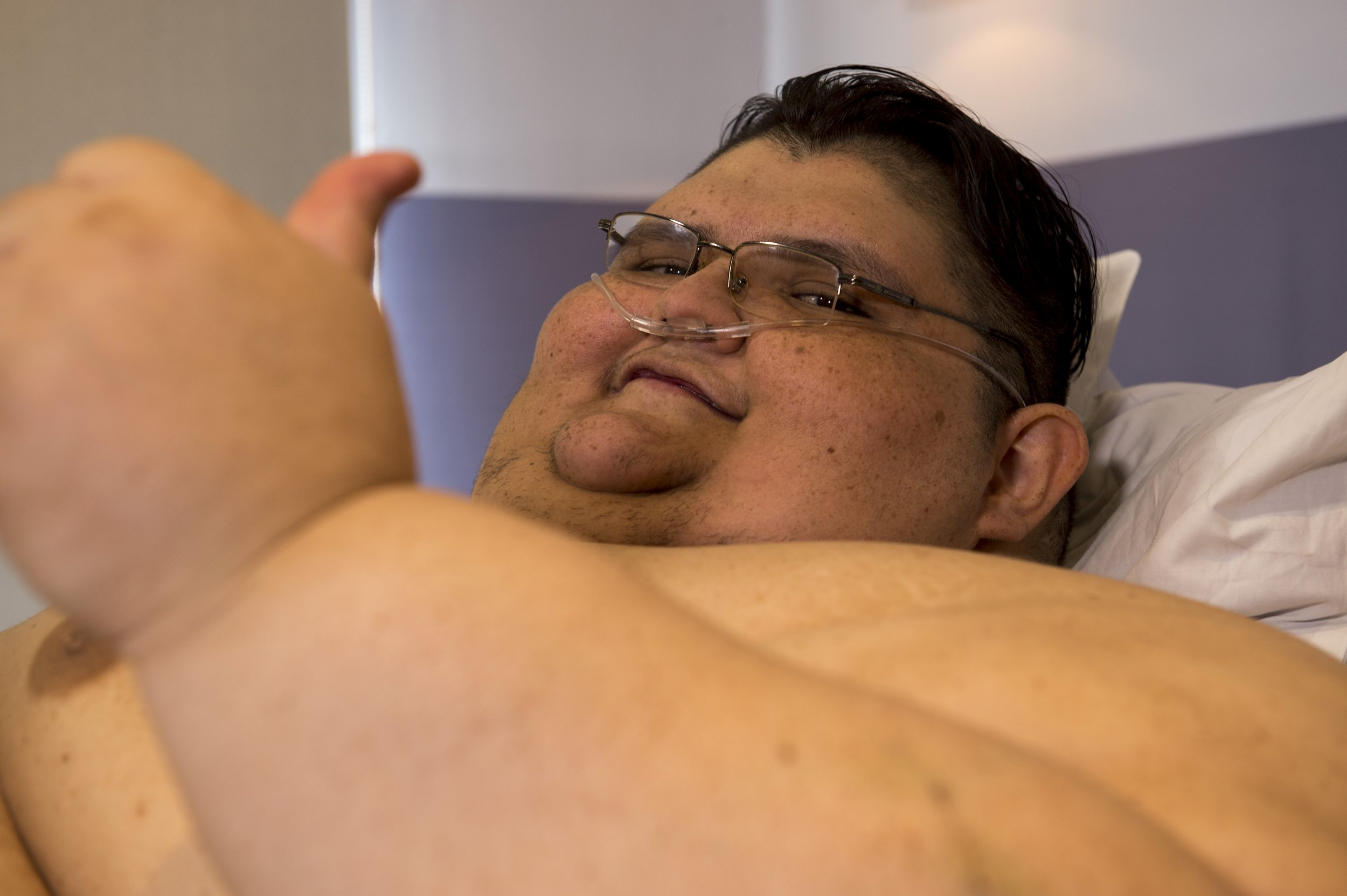 World S Once Heaviest Man Alive Loses Half His Body Weight Now Down To 600 Pounds