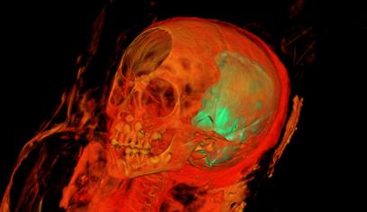 MummySkull