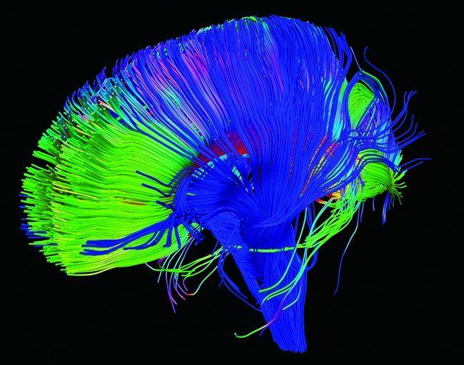 12_13_Diffusion Tensor Brain