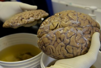 12_28_brain