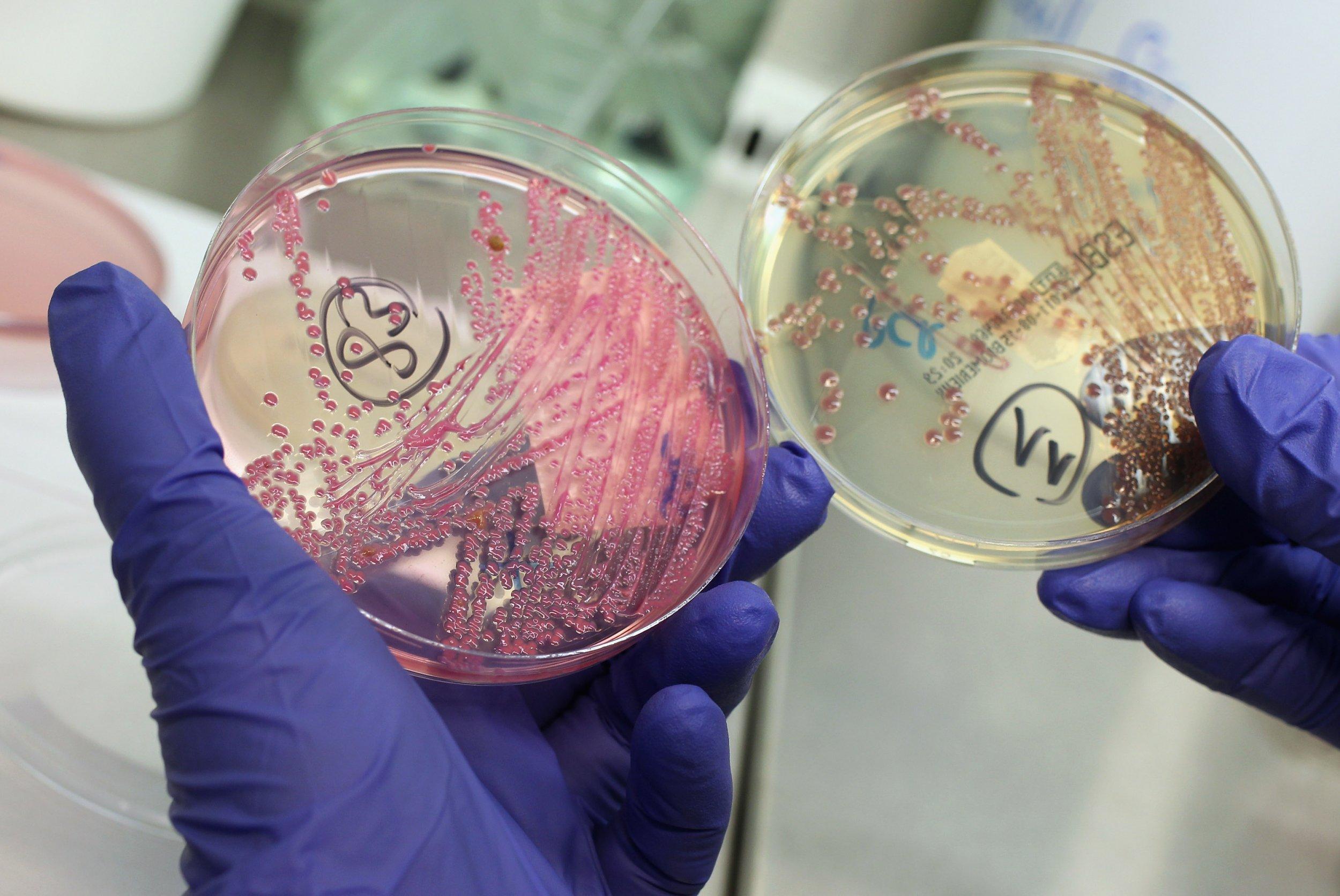 E. coli petri dish