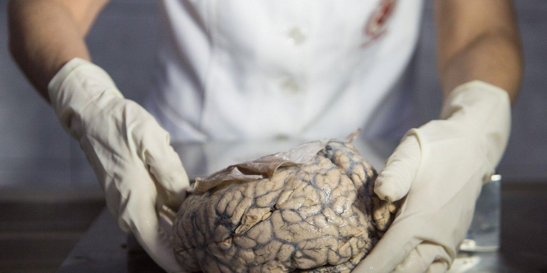 01_01_brain