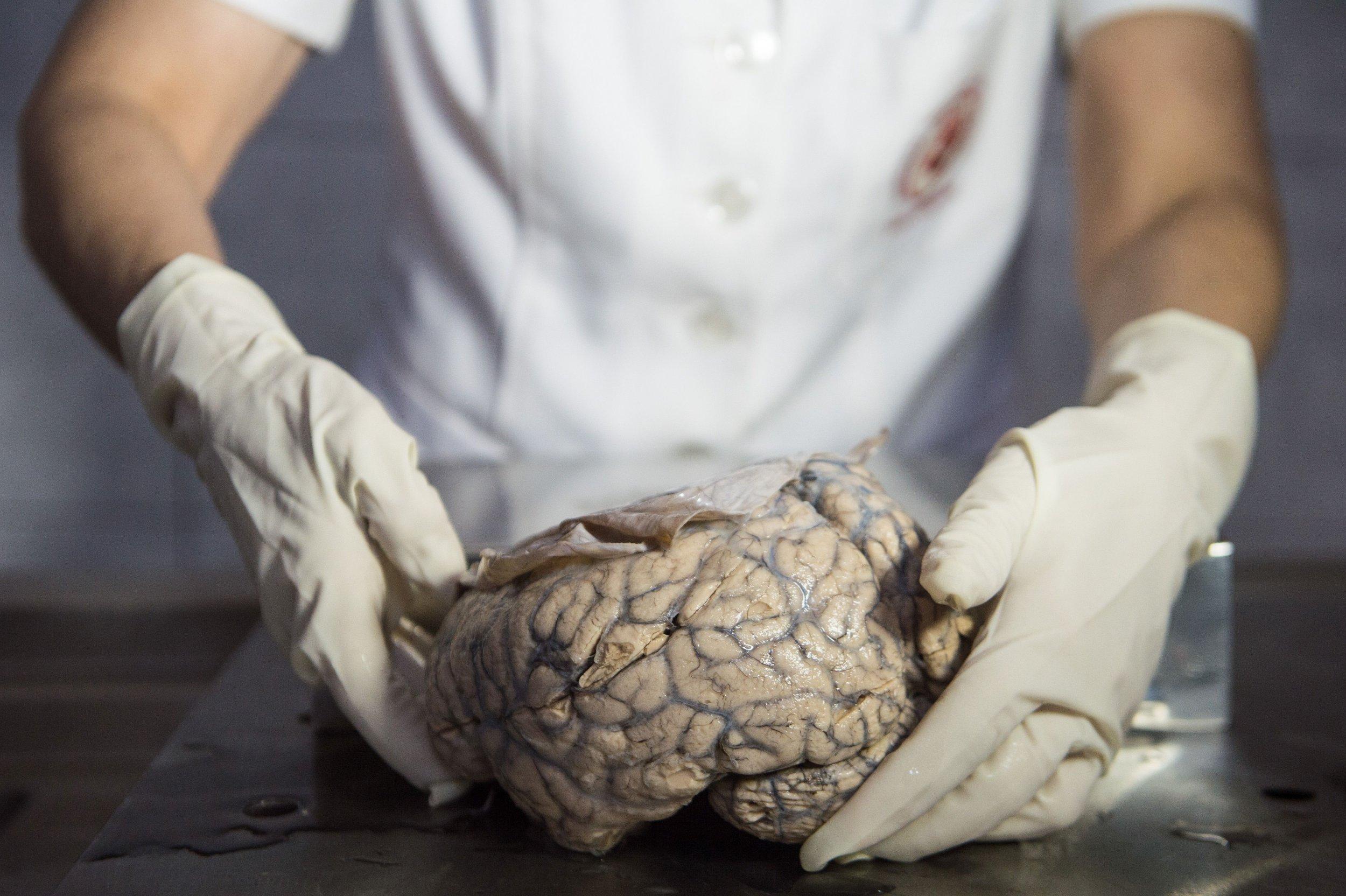 1_7_Brain