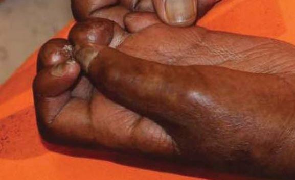 1_12_Arizona_Prison_Healthcare_Fingers