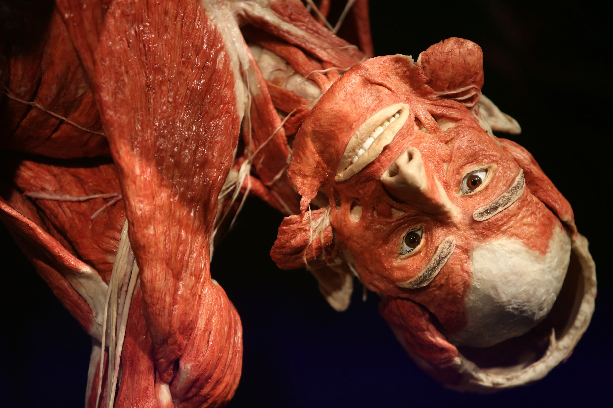 Bodyworlds Exhibit Why Are People Joining A Waiting List To Donate Their Bodies